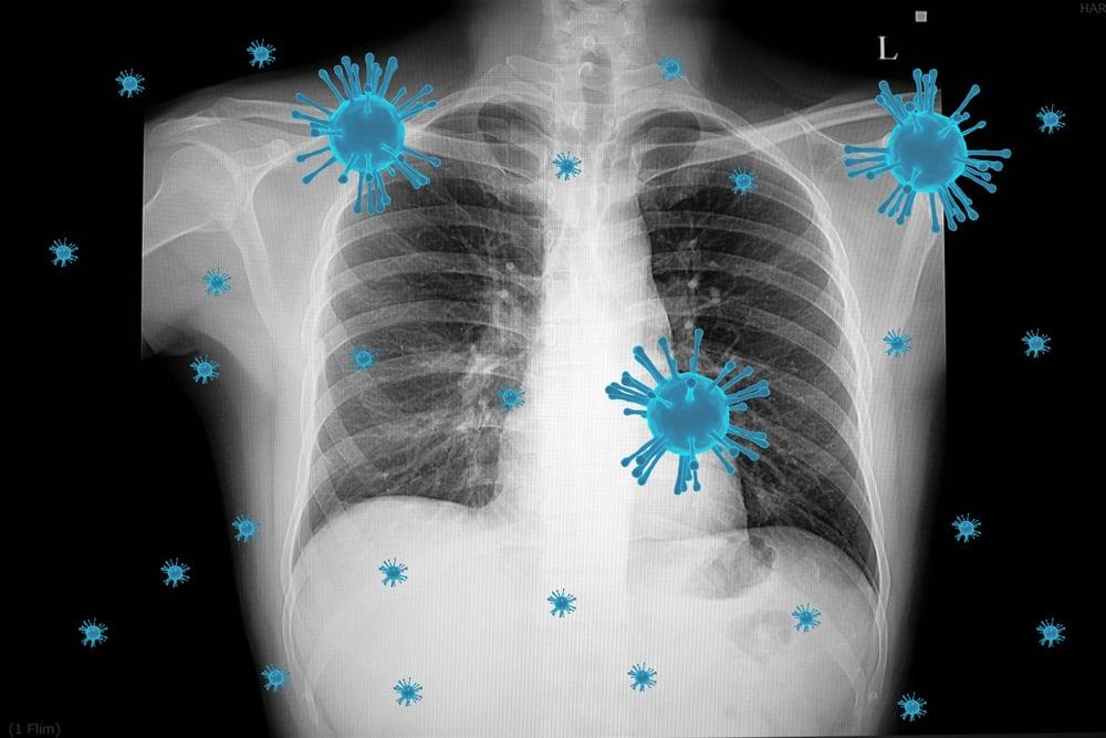 triệu chứng của viêm phổi không điển hình