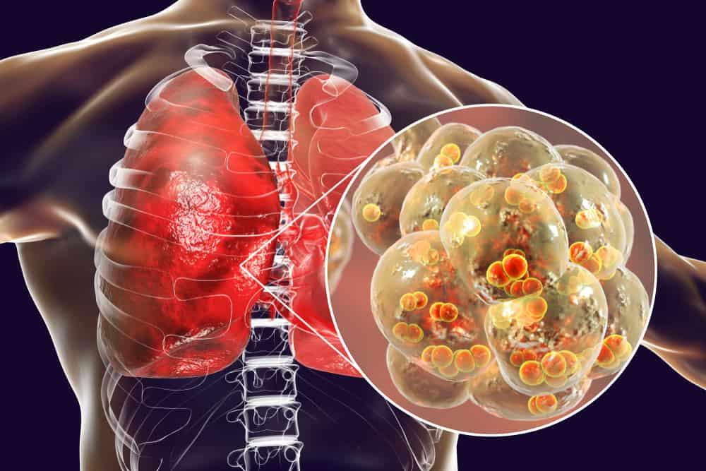 Bạn biết gì về viêm phổi thùy?