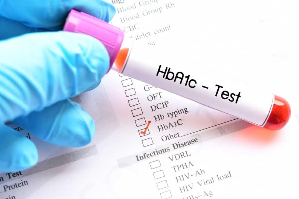 xét nghiệm HbA1c giúp ổn định chỉ số đường huyết của người bị tiểu đường