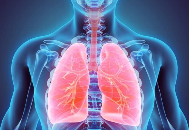 Xơ phổi