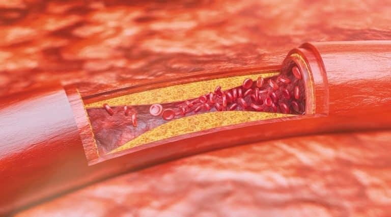Xơ vữa động mạch gây tê cánh tay trái